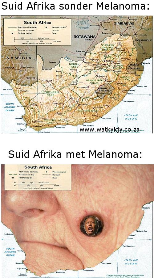 julius melanoma